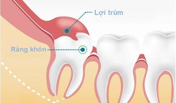 Mọc răng khôn là gì